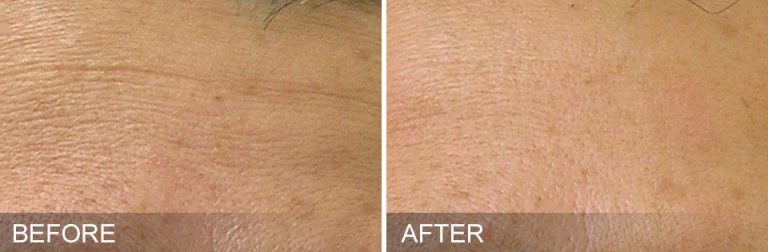 Hydrafacial before after for wrinkles and fine lines Aura MedSpa in Tampa, FL