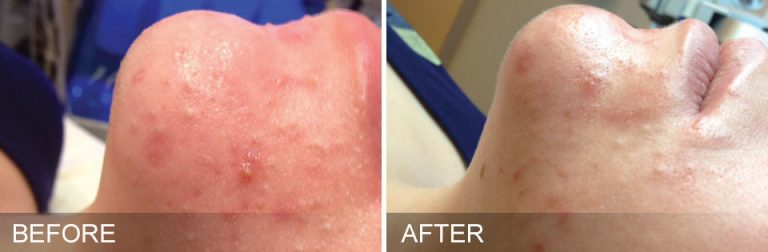 Hydrafacial for Acne before and after 4 treatments Aura MedSpa in Tampa, FL