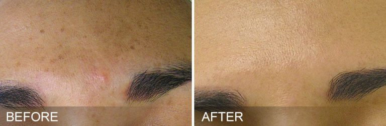 Hydrafacial for Pigmentation before and after 4 treatments Aura MedSpa in Tampa, FL