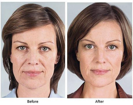 Patient treated with 5 vials of Sculptra. After photo is 12 months after treatment Aura MedSpa in Tampa, FL
